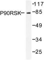 AP06436PU-N - RPS6KA1