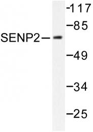 AP06457PU-N - SENP2