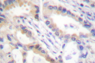 AP06475PU-N - Urocortin / UCN