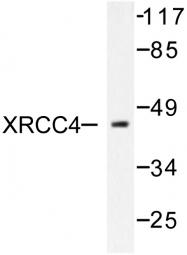 AP06483PU-N - XRCC4