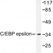 AP06502PU-N - CEBPE