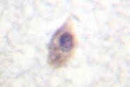 AP06509PU-N - CDC25B