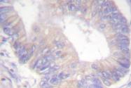AP06511PU-N - ABCC7 / CFTR