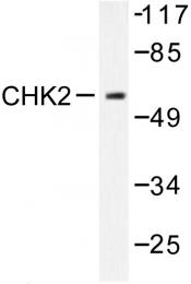 AP06512PU-N - CHK2