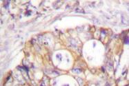 AP06531PU-N - Cytokeratin 8
