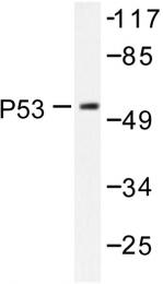 AP06551PU-N - TP53 / p53