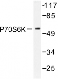 AP06552PU-N - RPS6KB1 / STK14A