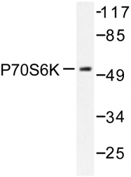AP06554PU-N - RPS6KB1 / STK14A