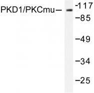 AP06568PU-N - PRKD1