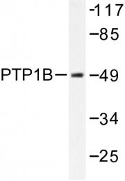 AP06575PU-N - PTPN1