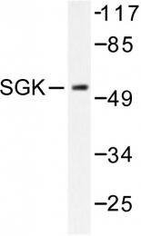 AP06580PU-N - SGK1 / SGK