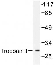 AP06588PU-N - Cardiac Troponin I