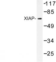 AP06595PU-N - IAP3 / BIRC4