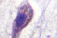 AP06610PU-N - Caspase-1