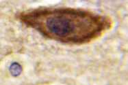 AP06615PU-N - IFNAR1