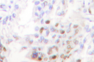 AP06620PU-N - AKT1 / PKB