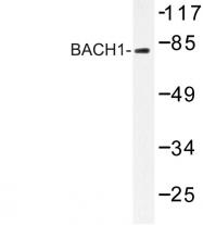 AP06634PU-N - BACH1
