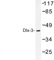 AP06641PU-N - DLX3