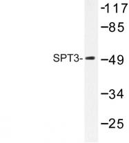 AP06645PU-N - SUPT3H / SPT3