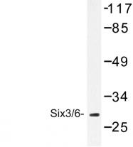 AP06651PU-N - SIX3/6