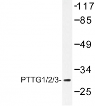 AP06655PU-N - PTTG1/2/3