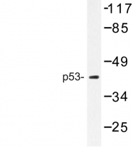 AP06657PU-N - TP53 / p53