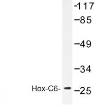 AP06660PU-N - HOXC6 / HOX3C