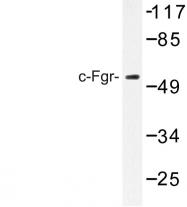 AP06661PU-N - FGR / SRC2
