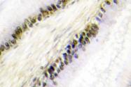 AP06664PU-N - NR2F6