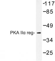 AP06667PU-N - PRKAR2A