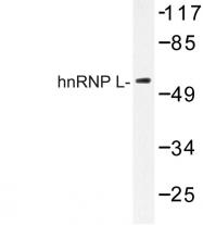 AP06669PU-N - hnRNP-L / HNRNPL