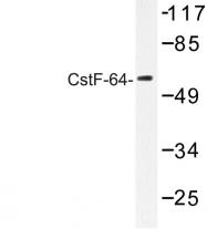 AP06681PU-N - CSTF2