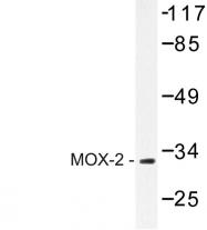 AP06700PU-N - MEOX2