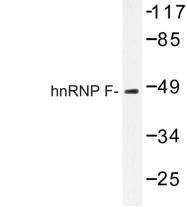 AP06706PU-N - hnRNP-F / HNRNPF