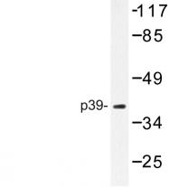AP06722PU-N - CDK5R2