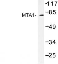 AP06723PU-N - MTA1