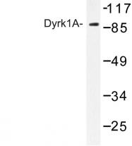 AP06728PU-N - DYRK1A