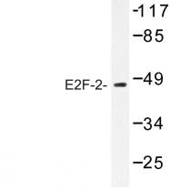 AP06731PU-N - E2F2
