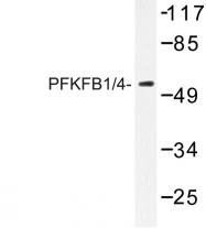 AP06742PU-N - PFKFB1/4