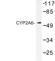 AP06774PU-N - CYP2A6