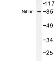 AP06799PU-N - Nibrin