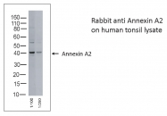 AB-10002 - Annexin A2 / ANXA2