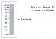 AB-10003 - Annexin A3 / ANXA3