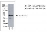 AB-10004 - Annexin A5 / ANXA5