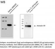 AB-10006 - Annexin A9 / ANXA9
