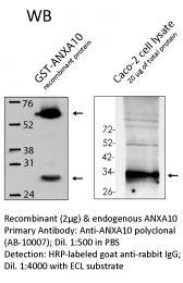 AB-10007 - Annexin A10 / ANXA10
