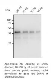 AB0197-200 - Pepsin