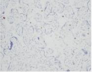 AM01373PU-N - Resistin