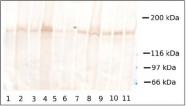 AM02250PU-S - Collagen type XVII alpha 1 chain