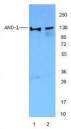AM06023PU-M - WDHD1